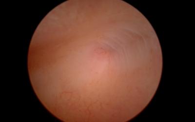 Office-Hysteroskopie ohne Narkose / Mini-Hysteroskopie ohne Narkose bei Kinderwunsch vor IVF – Synechien linkes Tubenostium